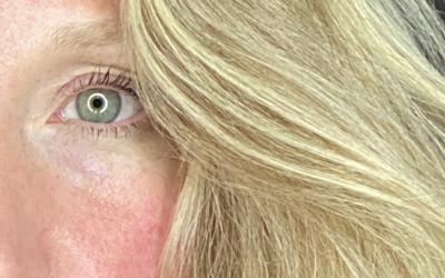 Skin Health: Healing Rosacea